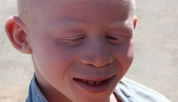 Roberto Dall'Olio: poesia sui bambini albini in Africa.
